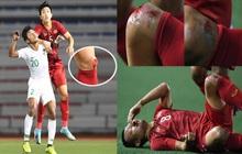 Nhìn lại hình ảnh Văn Hậu máu chảy ròng ròng, Trọng Hoàng toác hai đầu gối để đưa U22 Việt Nam vào chung kết SEA Games 30