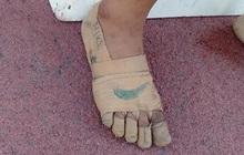 Nghị lực phi thường: Tự chế đôi giày bằng băng gạc y tế, VĐV điền kinh 11 tuổi đem về 3 huy chương vàng