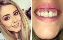 Đi tẩy trắng ở nơi thiếu uy tín, cô gái phải chịu tổn thương lớn trên hàm răng của mình