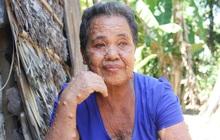"""Mọc đầy thịt dư """"quái dị"""", người đàn bà 58 tuổi sống cô độc vì chẳng ai dám đến gần, ngày ngày chờ đồ bố thí để ăn qua bữa"""