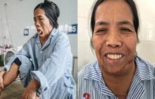Phép màu đến với người phụ nữ bị bỏng nặng, 50 năm không ngậm được miệng: Cuối cùng, Sáu đã có thể cười!
