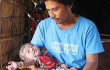 Lời khẩn cầu của người bố ẵm con trai 8 tháng tuổi không có hậu môn, bị suy dinh dưỡng nặng nằm chờ chết trong căn nhà lá xập xệ