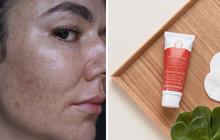 """Cải thiện bề mặt da và làm mờ nám, đây chính là thành phần chống lão hóa """"chân ái"""" cho các nàng tuổi 30"""