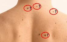 5 biểu hiện lạ của nốt ruồi mà bạn cần hết sức chú ý, có thể có nguy cơ bị ung thư da