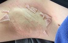 Dùng thuốc lột da theo tư vấn của spa để chữa thâm nách, cô gái trẻ hãi hùng với thứ nhìn thấy sau lớp da bong