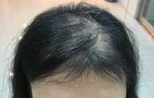 Bé gái 13 tuổi bị hói đầu, rụng sạch lông mi, lông mày, biết nguyên nhân bố mẹ nào cũng giật mình