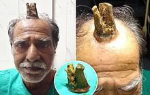 """Cứ nghĩ khối u trên đầu vô hại, người đàn ông chẳng ngờ sau 5 năm nó hóa """"sừng quỷ"""" dài 10cm làm ai nhìn vào cũng thấy sợ"""