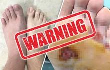 """Cảnh báo: Đi chân trần trong buồng tắm chung ở phòng gym khiến người đàn ông bị vi khuẩn """"ăn thịt người"""" tấn công"""
