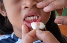 Đột nhiên chảy máu nướu răng hãy làm ngay những việc này để khắc phục