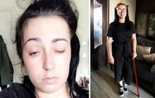 Nhờ tấm hình selfie, người mẹ trẻ được phát hiện mắc bệnh đột quỵ não kịp thời
