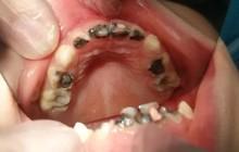 Vì suy nghĩ sai lầm của cha mẹ mà bé gái mới 5 tuổi đã có 14 chiếc răng sâu trong miệng