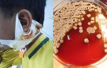 Nghệ An: Sức khỏe 3 bệnh nhi nhiễm vi khuẩn ăn thịt người chuyển biến tốt