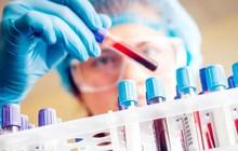Startup Singapore muốn xóa sổ ung thư giai đoạn cuối vào năm 2048, bằng xét nghiệm máu phát hiện sớm 8 loại ung thư