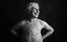 Loạt ảnh đáng kinh ngạc cho thấy sự thật nghiệt ngã khi phải chung sống với ung thư
