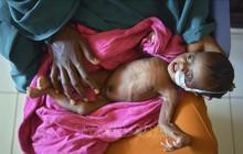 Khoảng 130 triệu trẻ dưới 5 tuổi tử vong trên thế giới kể từ năm 2000