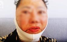 Trong các phương pháp căng da mặt, căng da mặt bằng chỉ, dù nhẹ nhàng nhất nhưng cũng có rủi ro biến chứng đi kèm!