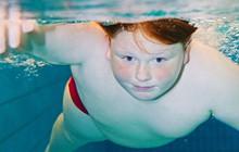 """Nghiên cứu cho thấy người béo phì có thể """"chết đuối"""" trong chính chất béo của họ"""