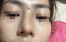 Yên Bái: Bé gái 13 tuổi bị mù sau khi giấu mẹ đi nâng mũi trả góp