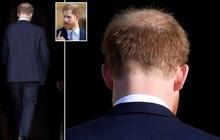 """""""Nghiệp quật không chừa một ai"""": Nhiều năm trước trêu chọc anh trai thiếu tóc, Hoàng tử Harry giờ cũng đã có dấu hiệu bị hói đầu"""
