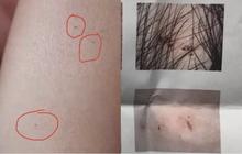 Vụ trẻ mẫu giáo có vết kim đâm kỳ lạ: Cảnh sát bắt được 3 cô giáo tàn độc, hiệu trưởng trường mẫu giáo bị cách chức