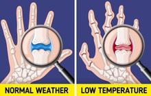 Đừng coi thường sưng tấy do nắng nóng hay da khô nứt nẻ vì giá lạnh, thời tiết có thể gây ra những tác hại đáng sợ thế này  với cơ thể