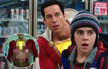 """Siêu anh hùng Shazam nhà DC """"sốc điện"""" toàn dân với ảnh thân hình lông lá chảy xệ"""