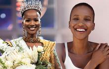 """Hoa hậu """"lạ"""" nhất trong lịch sử: Mỹ nhân trọc đầu sở hữu nhan sắc hoàn mỹ, nhưng sức hút tuyệt vời nhất lại đến từ học thức cùng nụ cười tỏa nắng"""