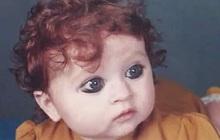 """Bé gái sinh ra với ngoại hình khác lạ khiến người đời nguyền rủa là """"quái vật"""", 20 năm sau lại khiến ai cũng phải trầm trồ"""