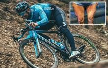 VĐV đua xe đạp gây choáng khi đăng tải hình ảnh cặp giò lên MXH, fan thảng thốt: Anh ơi đừng tập nữa, chân cẩn thận nổ tung