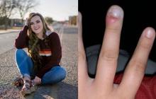 Cô gái 18 tuổi suýt mất ngón tay do thói quen xấu mà ai cũng dễ mắc phải