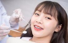 Lợi ích bất ngờ từ việc niềng răng
