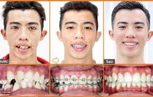 Nhật ký niềng răng 2 năm của chàng PT 24 tuổi tại nha khoa chuyên niềng răng Up Dental