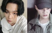 """Bí mật giờ mới kể về vết sẹo trong """"Daechwita"""" của SUGA (BTS): Từng có vết sẹo ngay giữa mũi nhưng sao lại trùng hợp với MV từ năm 2016 thế này?"""