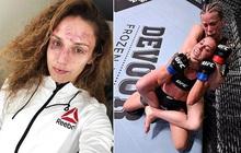 Xót xa trước gương mặt chằng chịt vết thương ngang dọc của nữ võ sĩ xinh đẹp sau khi phải nhận 200 cú đấm từ phía đối thủ