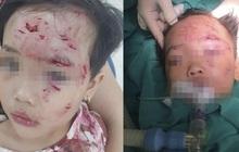 Phú Thọ: Bé gái 3 tuổi bị chó nhà hàng xóm cắn lộ xương trán