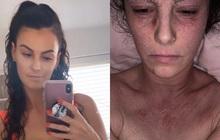 Da tróc lở, bật máu vì bệnh chàm, người phụ nữ tạo nên bất ngờ lớn nhờ dũng cảm từ bỏ một loại thuốc và tắm 2 lần một tuần