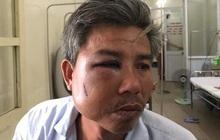 Khởi tố chủ quán cà phê đánh nhân viên cây xanh nhập viện
