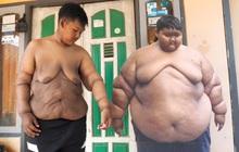 Hành trình giảm cân ngoạn mục của cậu bé béo nhất thế giới nặng gần 200kg khi mới 10 tuổi nhưng để lại cơ thể bị chảy xệ gây ám ảnh
