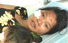 Lời kể hãi hùng của người sống sót trong vụ tai nạn thảm khốc ở Kon Tum