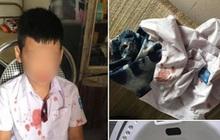 """Vụ người đàn ông đấm hộc máu mồm bé trai lớp 1 để """"trả thù"""" thay con: Mẹ nạn nhân lên tiếng"""