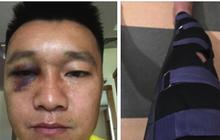 Cựu tuyển thủ Việt Nam mắt thâm sì, chấn thương nặng sau va chạm mạnh với đồng đội