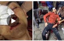 Vụ việc nam thanh niên tố bị CSGT đánh: Xem xét hành vi chống người thi hành công vụ