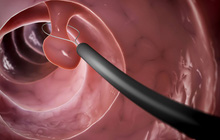 Polyp là gì? 4 bộ phận trong cơ thể nếu có polyp thì nguy cơ mắc bệnh ung thư là rất cao