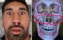 Húc đầu vào người đối phương, cầu thủ ôm mặt đau đớn rời sân, khi chụp chiếu các bác sĩ phát hiện ra chấn thương kinh hoàng