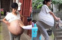 """Người phụ nữ có """"bụng bầu"""" khổng lồ, lớn dần suốt 2 năm qua khiến bác sĩ hoang mang tột độ vì không rõ nguyên nhân"""