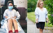 Nữ y tá bị mất chân sau chuỗi ngày dài làm việc cường độ cao để chăm sóc bệnh nhân Covid-19