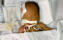 TP.HCM: Bé trai sơ sinh nặng 1,4kg bị bỏ rơi trước cổng chùa đã được bố mẹ đến đón về sau 2 tháng