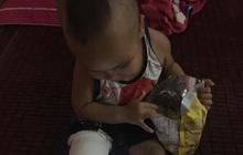 """Xôn xao bé trai 2 tuổi ở Thái Nguyên gãy chân sau khi đến lớp, gia đình """"tố"""" cô giáo tự đưa đến trạm y tế mà không thông báo"""