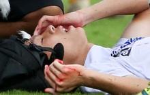 Cầu thủ trẻ HAGL chảy máu đầu đầm đìa sau va chạm vẫn cố thi đấu hết trận