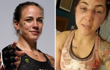 Nữ võ sĩ bị đánh sưng tấy mặt chỉ 3 tuần trước lễ cưới, đối thủ hối hận: Tôi xin lỗi